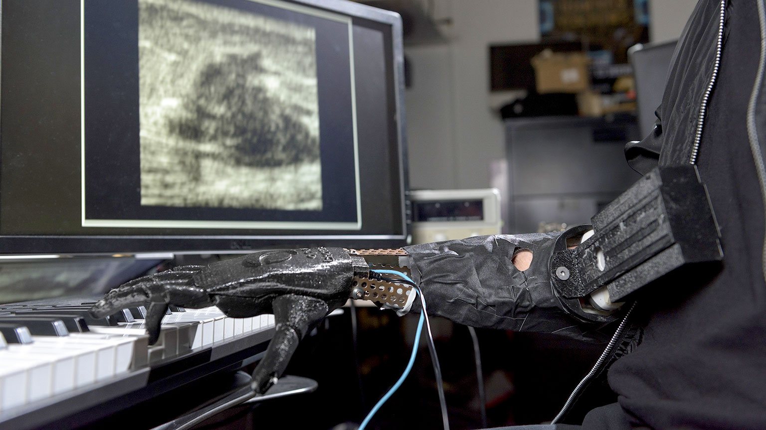 "A robotic prosthetic hand called the ""Skywalker Hand"" invented by the Center for Music Technology, plays a keyboard."